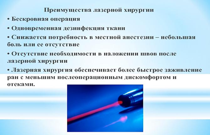 Лазерная процедура обрезания