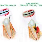 Эффективность плазмолифтинга десен — современная процедура по восстановлению пародонта