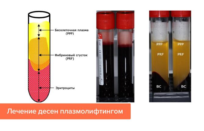 Лечение десен плазмолифтингом