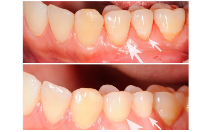 Фото до и после процедуры плазмолифтинга десен