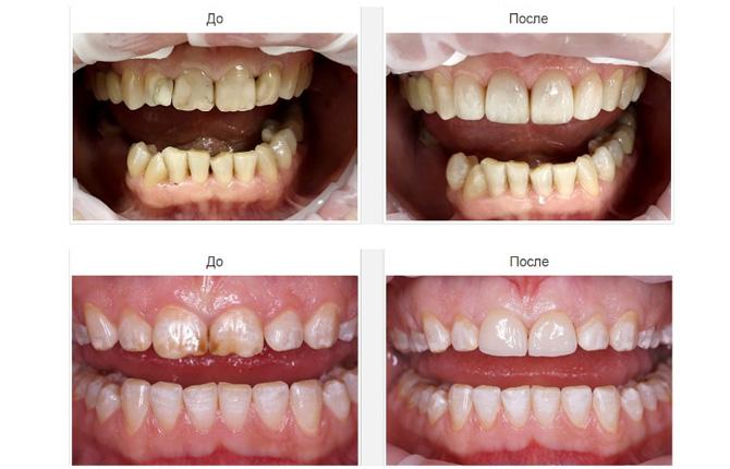 До и после процедуры плазмолифтинга десен