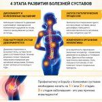 Лазерная терапия суставов  — эффективное лечение лазером