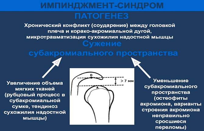Импиджент-синдром патогенез