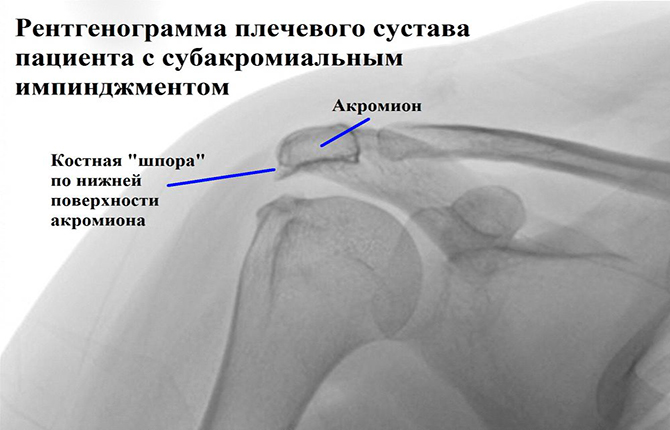 Рентгенограмма плечевого сустава с импинджментом