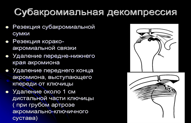 Субакромиальная декомпрессия