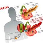 Как вылечить панкреатит полностью — правила терапии заболевания
