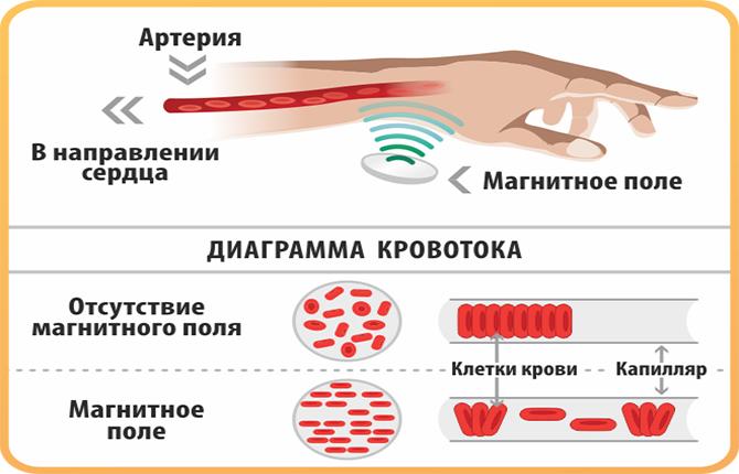 Кровоток при магнитотерапии