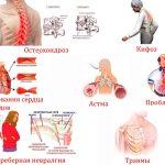 Распространенные причины боли в грудном отделе позвоночника: эффективные методы лечения