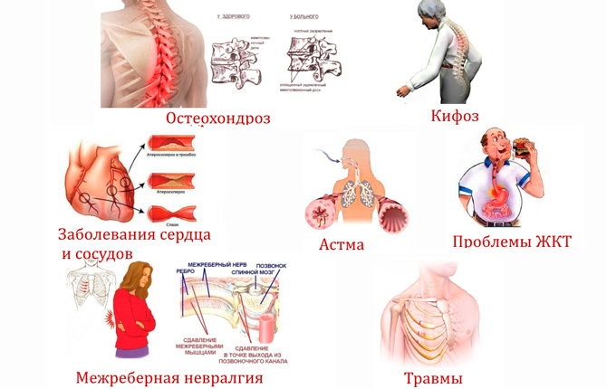 Причины болей в грудном отделе