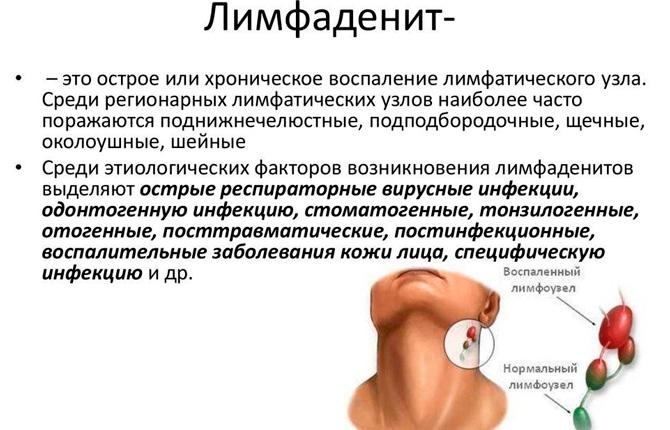 Лимфаденит