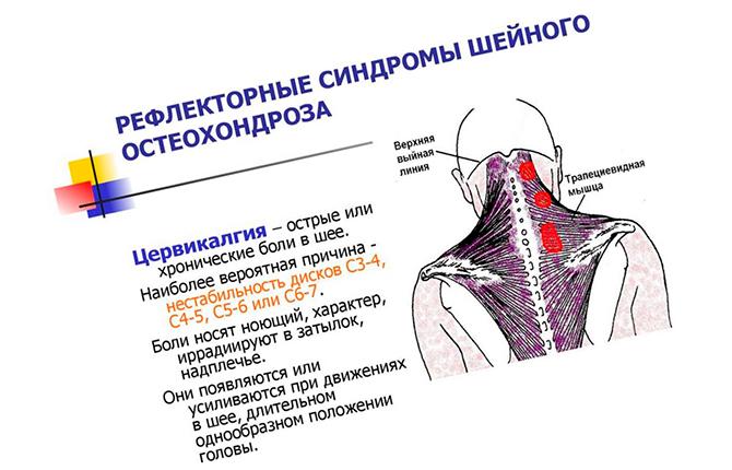 Синдромы шейного остеохондроза