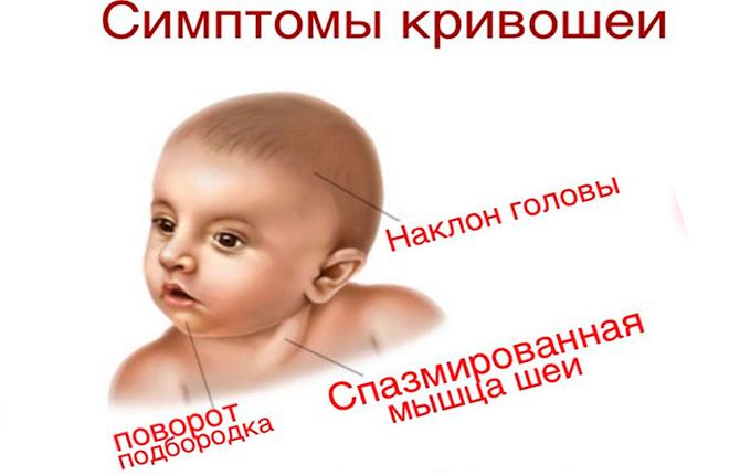 Симптомы кривошеи
