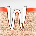 Что делать, если корень зуба остался в десне — этапы удаления