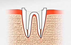 Корень зуба