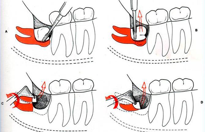 Как удаляют корень зуба мудрости