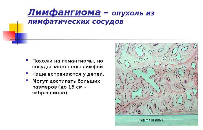 Лимфагинома