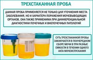 Анализ на лейкоцитурию