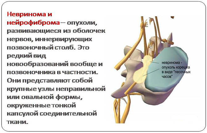 Невринома (шваннома) позвоночника