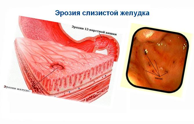 Эрозия слизистой желудка