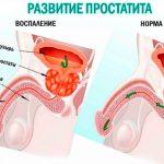 Причины возникновения инфекционного простатита — методы лечения